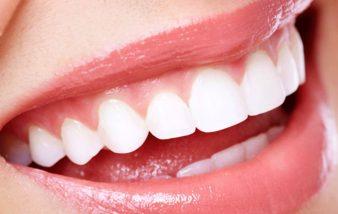 Comment faire pour blanchir les dents ?