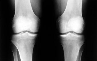 Traitement arthrose dorsale : Ce que les néophytes doivent savoir pour bien comprendre la maladie de l'arthrose dorsale